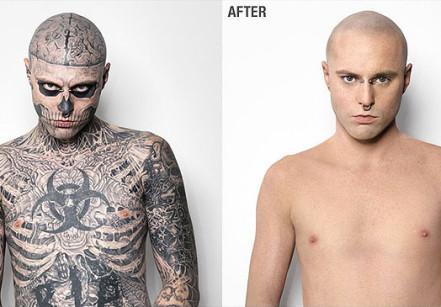 zombie boy antes e depois